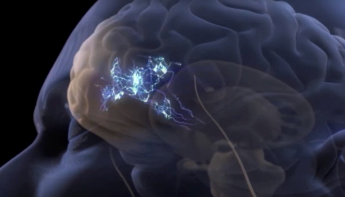 Fibromyalgia in the brain