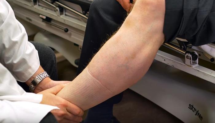 Venous thromboembolism leg exam (Credit The Ottawa Hospital)