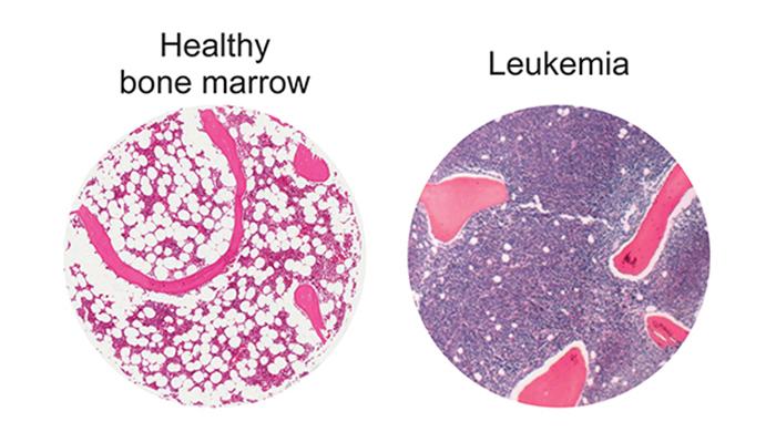 Human bone marrow images