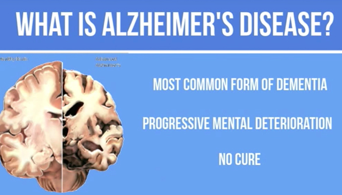 A glimpse of Alzheimer's disease