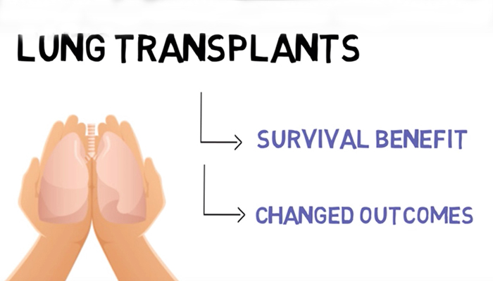 Cystic fibrosis and lung transplants
