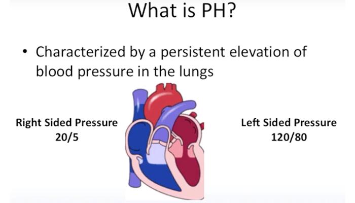 Scleroderma-associated pulmonary hypertension