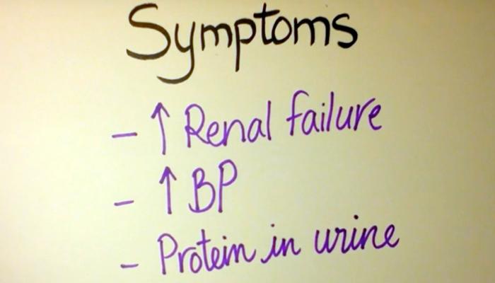 Scleroderma renal crisis