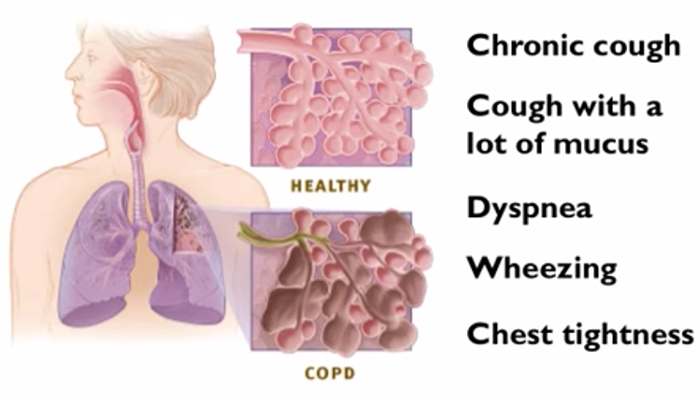 When to seek help for COPD?