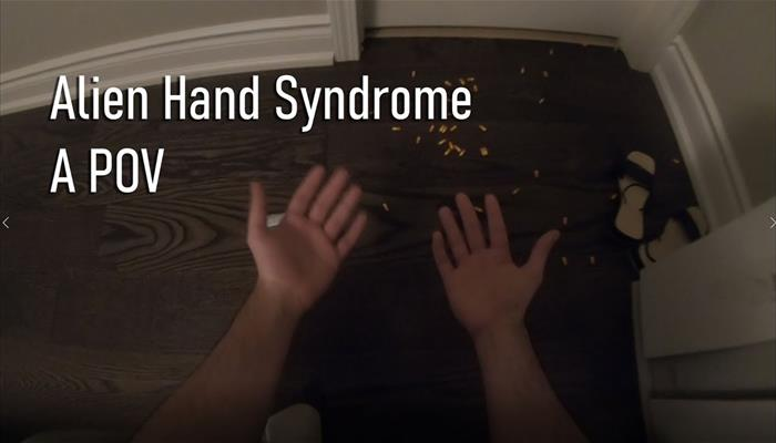 Alien Hand Syndrome - A First Person POV
