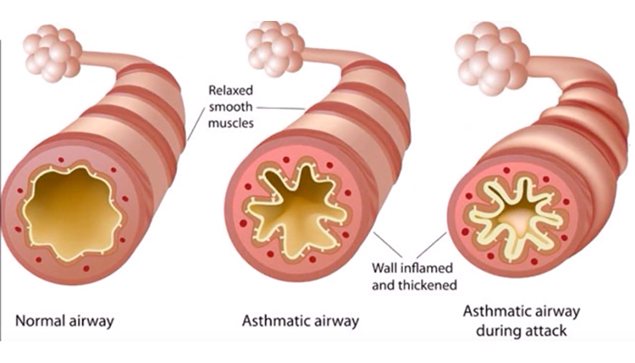 Allergen-induced asthma