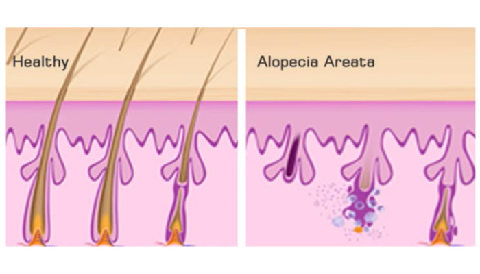 Alopecia areata balding comparison