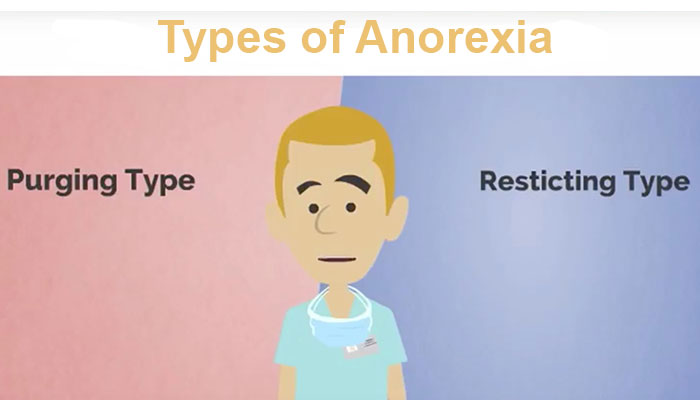 Types of anorexia