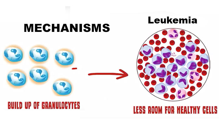 Chronic myeloid leukemia mechanisms