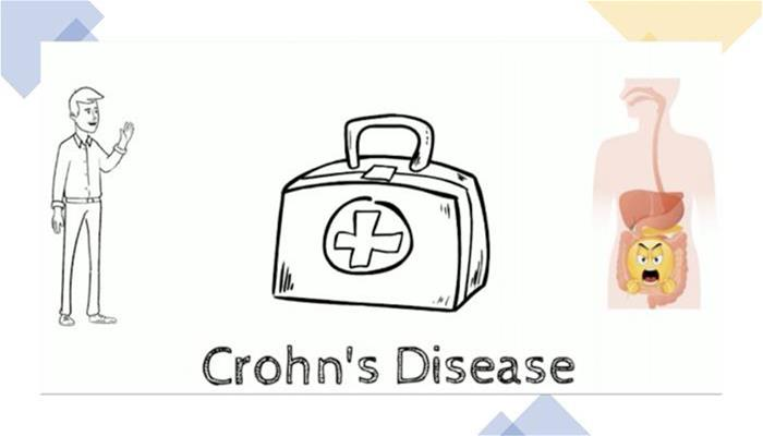 Crohns Disease - A quick overview of everything you should know