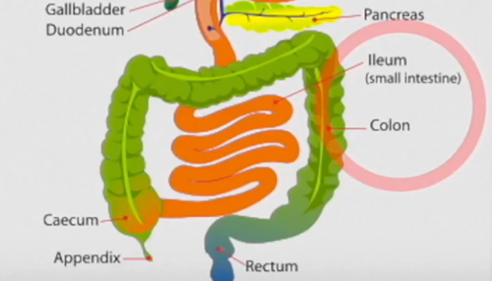 Crohn's disease and its effect on the body