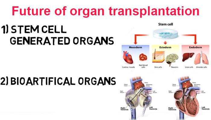 Future of organ transplantation