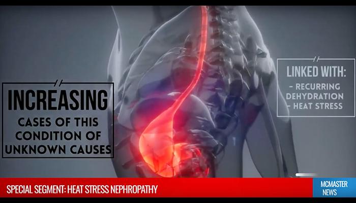 Heat stress nephropathy