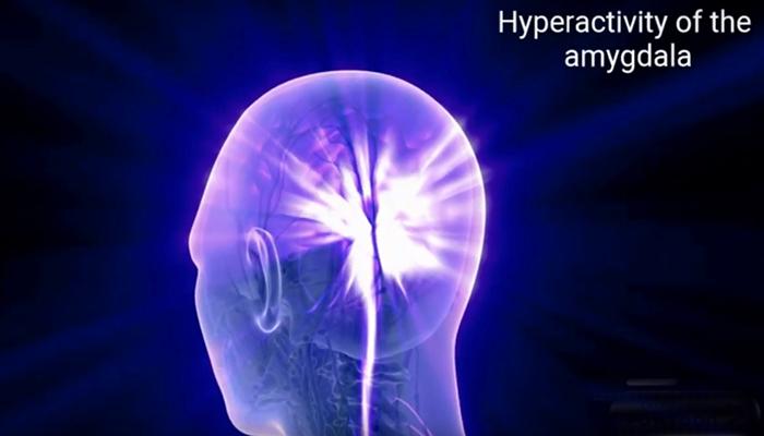 Hyperactivity of the amygdala