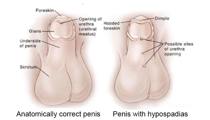 Penis with hypospadias