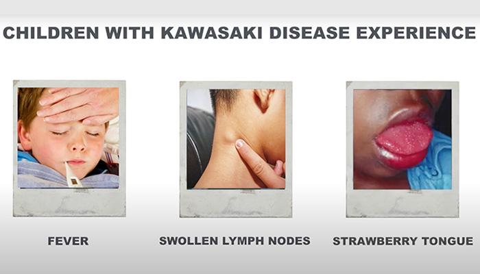 Kawasaki disease symptoms
