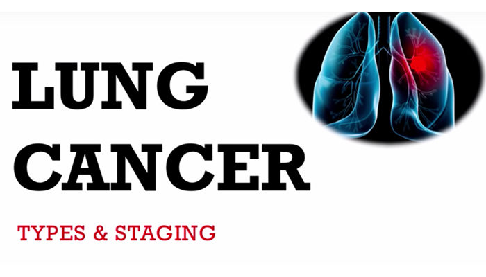 Lung cancer staging
