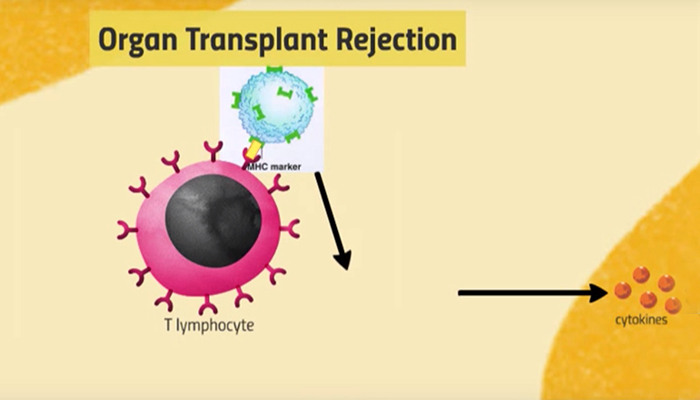 Organ transplant rejection
