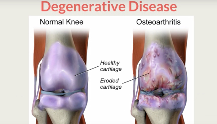Osteoarthritis knee joint compared to normal knee joint