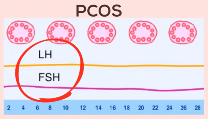 PCOS LH : FSH ratio