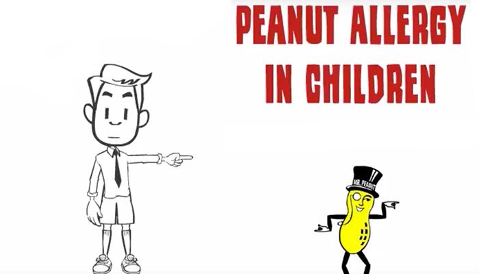 Peanut allergy in children