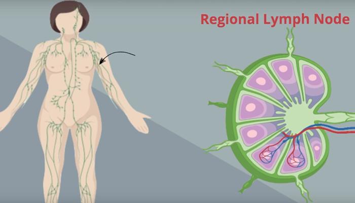 Regional lymph node