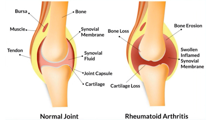 Joint with rheumatoid arthritis compared with normal joint
