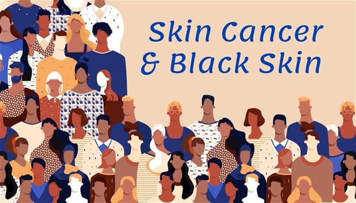 Skin Cancer and Black Skin