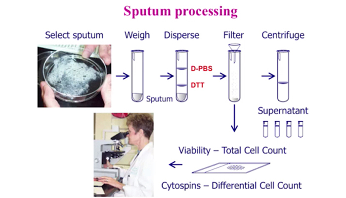 Sputum processing