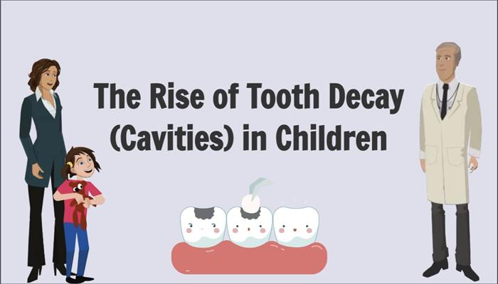 The Rise of Tooth Decay (Cavities) in Children