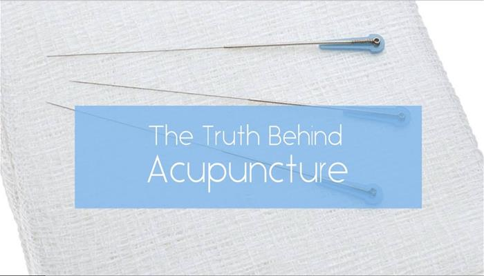 The Truth Behind Acupuncture