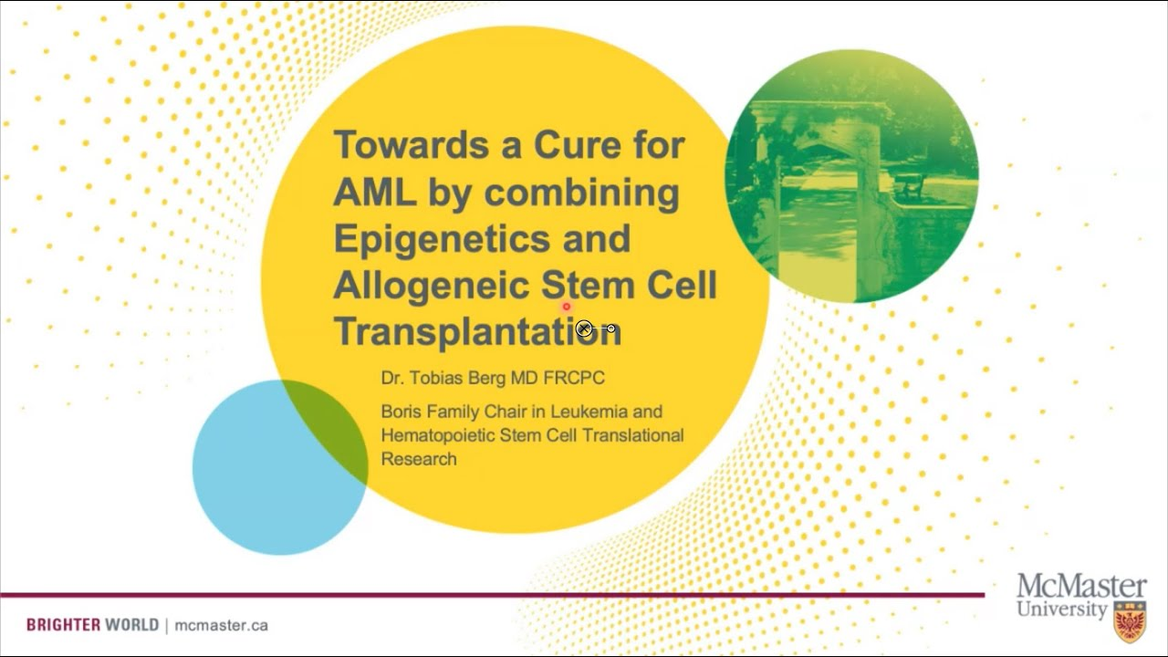 Towards a Cure for Acute Myeloid Leukemia by combining Epigenetics and Stem Cell Transplantation