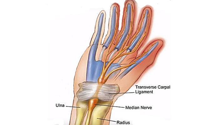 Tranverse carpal ligament