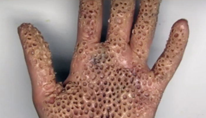 Trypophobia Medical Concern Or Exaggerated Internet Myth