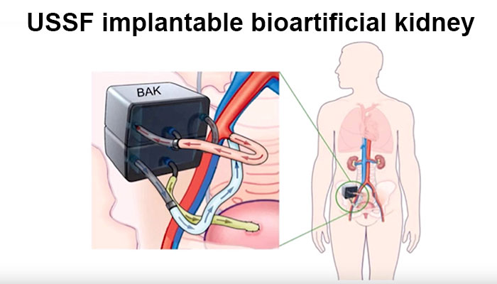 UCSF implantable bioartificial kidney