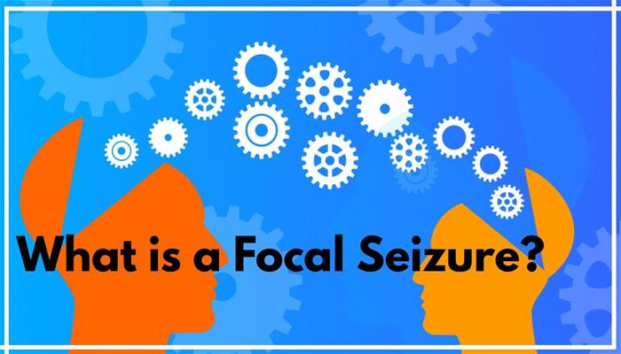 What is a focal seizure