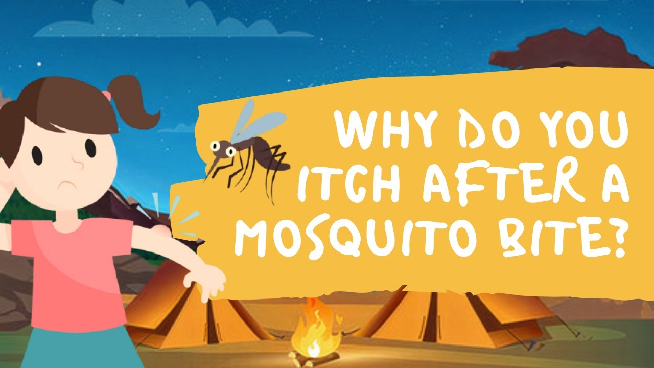 Why do you Itch after a Mosquito Bite - KidZone