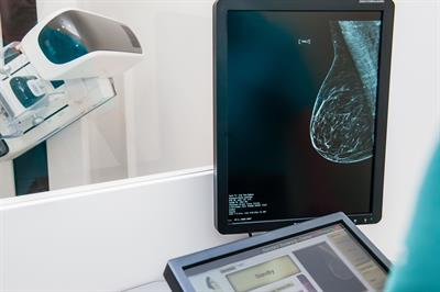 mammography machine and image