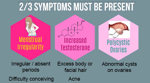Polycystic ovary syndrome symptoms