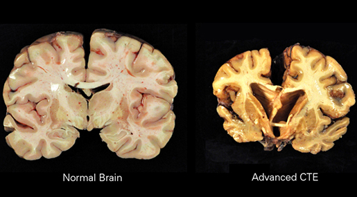 CTE brain compared with normal brain